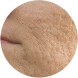 cicatrizes-acne