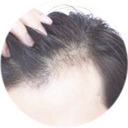 queda-cabelo